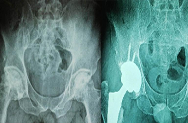 bệnh nhân chụp X quang thoái hóa khớp háng