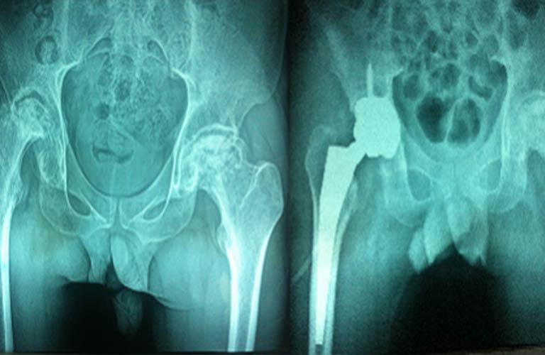 bệnh nhân thoái hóa khớp háng được chỉ định phẫu thuật