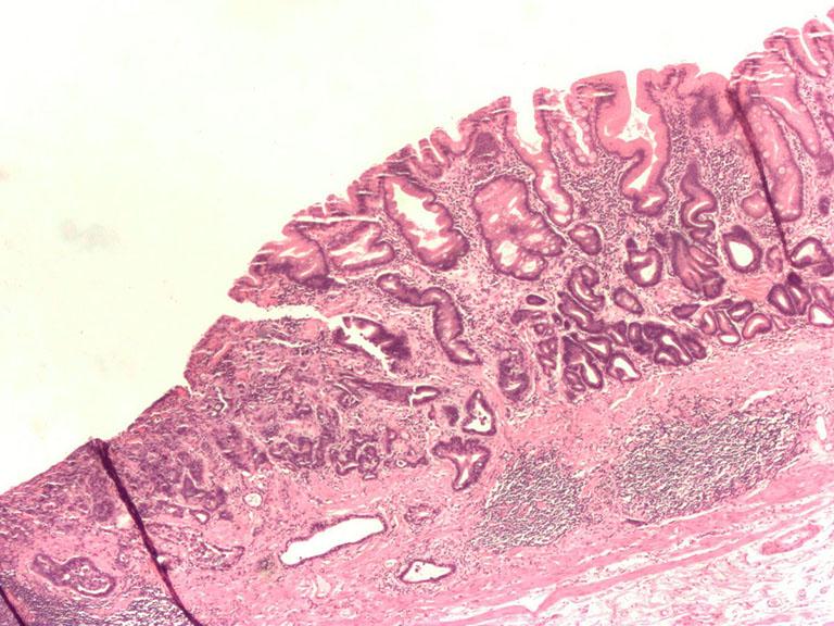 Hình ảnh chuyển sản ruột