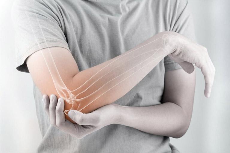 nguyên nhân và cách xử lí đau cứng khớp