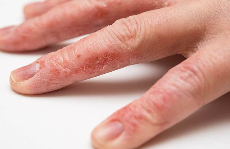 triệu chứng bệnh chàm khô