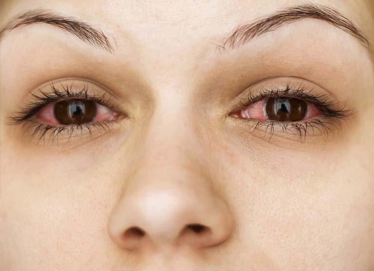 Dị ứng ở mắt