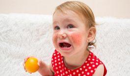 Dị ứng thức ăn ở trẻ