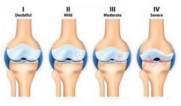 các giai đoạn của viêm khớp gối và cách điều trị
