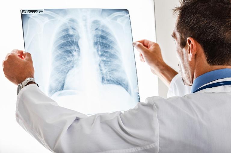 Chẩn đoán bệnh giãn phế quản bằng phương pháp chụp X - quang