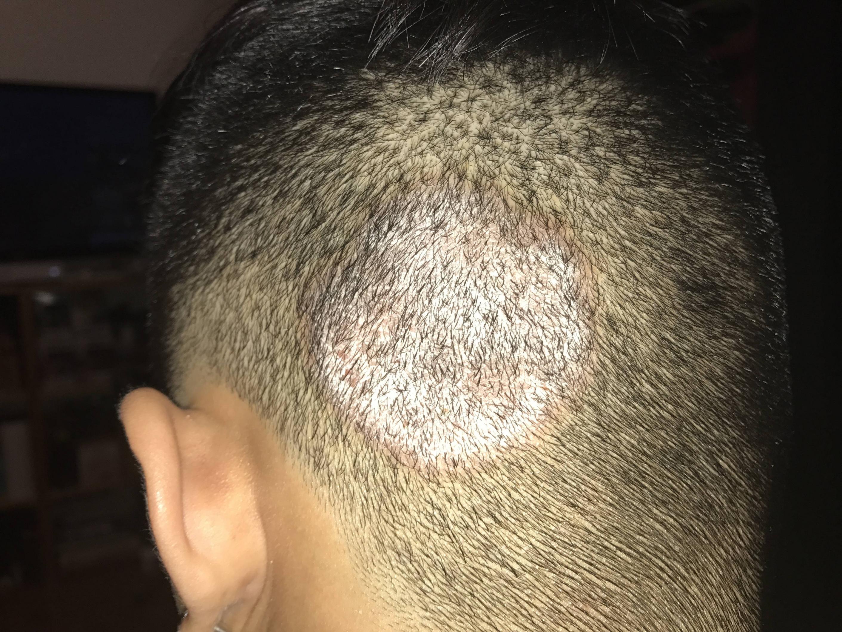 hắc lào trên da đầu