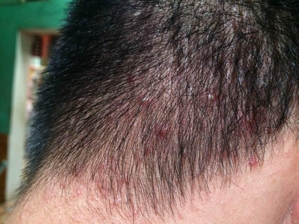 triệu chứng hắc lào trên da đầu