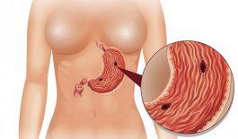 cách xử trí bệnh nhân thủng dạ dày tá tràng