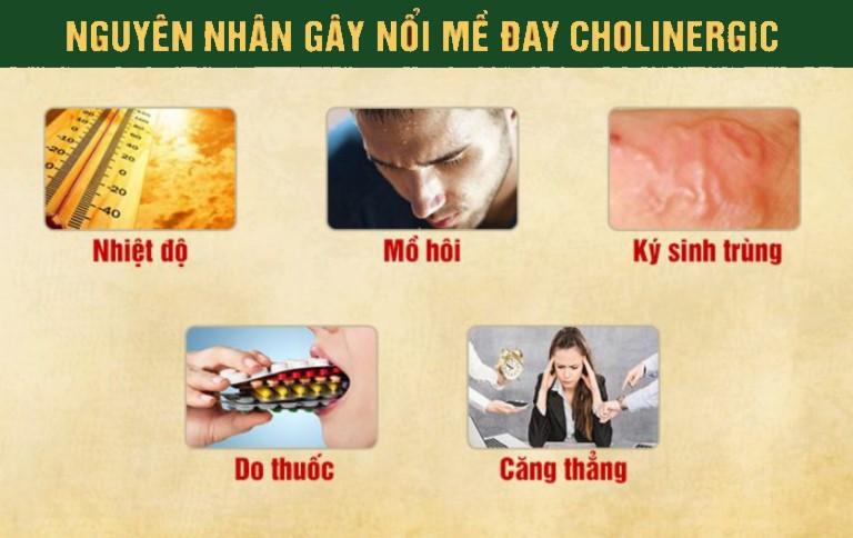 Nguyên nhân gây nổi mề đay Cholinergic
