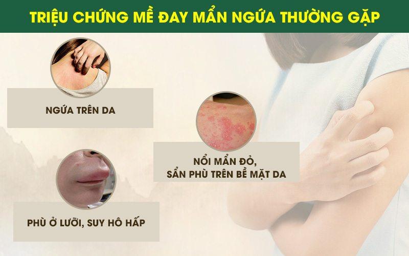 Một số triệu chứng mề đay mãn tính