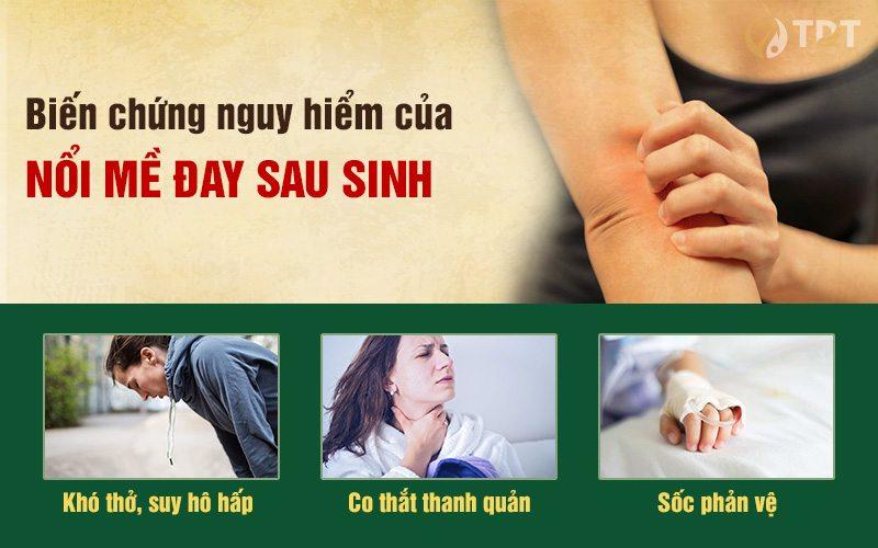 Biến chứng nguy hiểm khi bị mề đay sau sinh