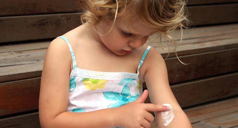 điều trị mề đay ở trẻ