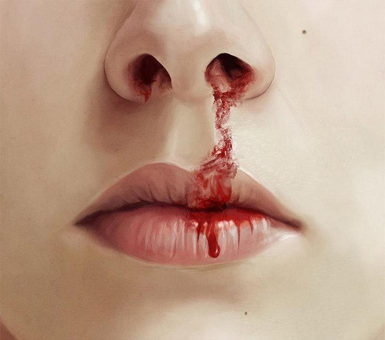 mũi bị chảy máu đông