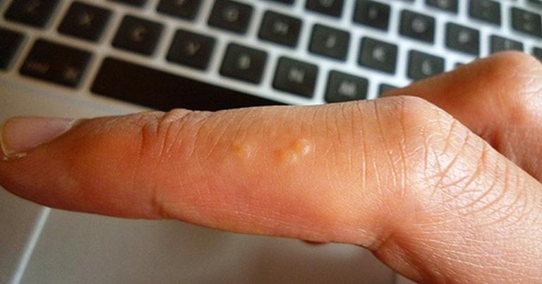 Tìm hiểu về chứng nổi mụn nước ở tay và cách điều trị