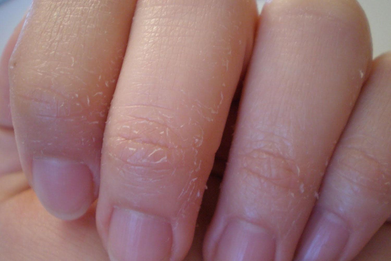 nguyên nhân gây ngứa da vào ban đêm