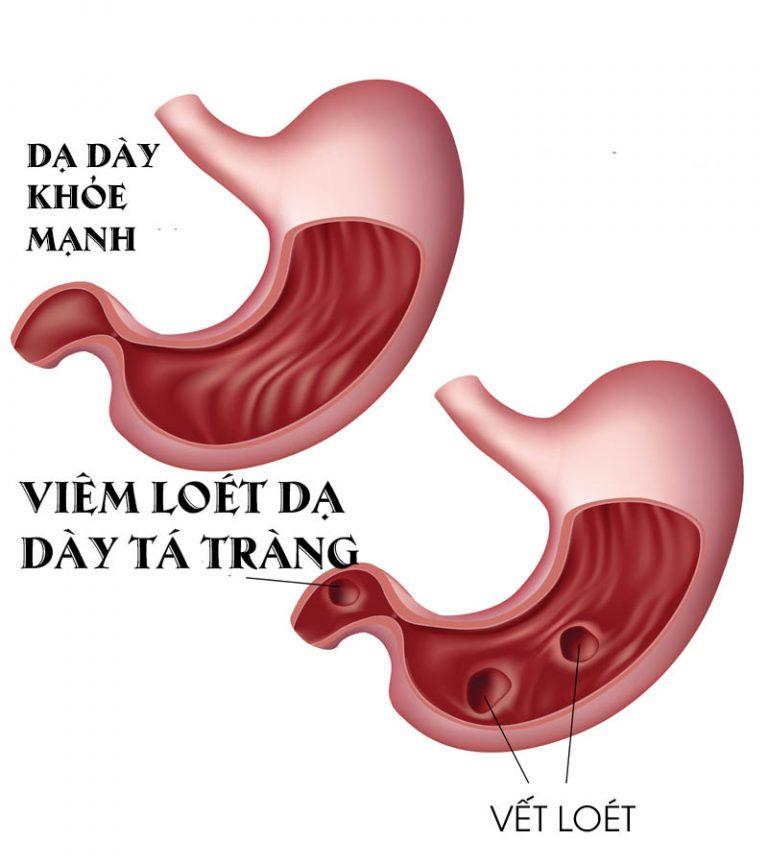 Giải thích cơ chế bệnh sinh trong viêm loét dạ dày tá tràng
