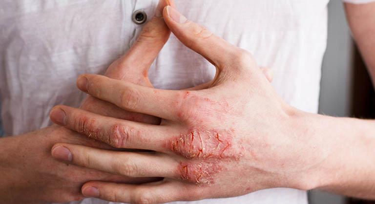 nguyên nhân gây ngứa lòng bàn tay