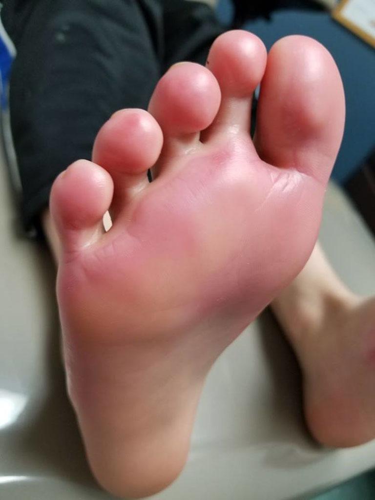 nguyên nhân gây mụn nước ở bàn chân