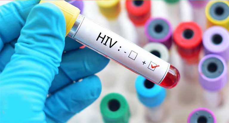nhiễm HIV