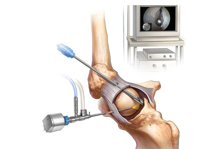 Quy trình phẫu thuật nội soi khớp háng