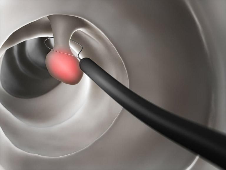 Mổ nội soi polyp dạ dày