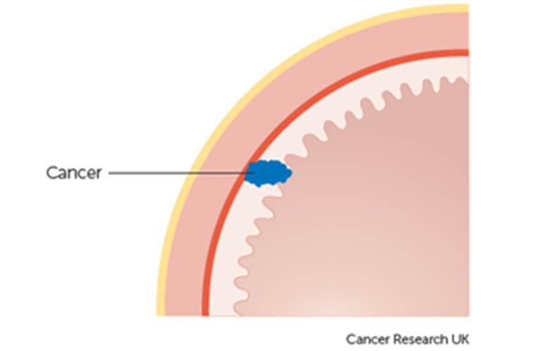 ung thư dạ dày giai đoạn 1A