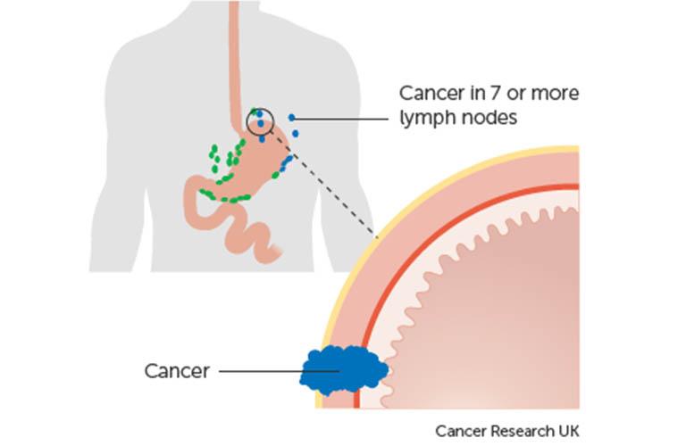 ung thư dạ dày giai đoạn 3C