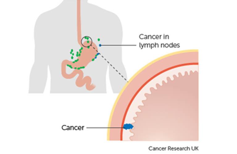 ung thư dạ dày giai đoạn 1B
