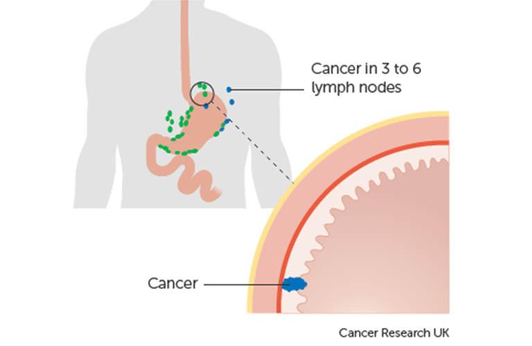 ung thư dạ dày giai đoạn 2A