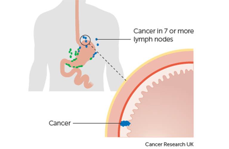 Ung thư dạ dày giai đoạn 2B