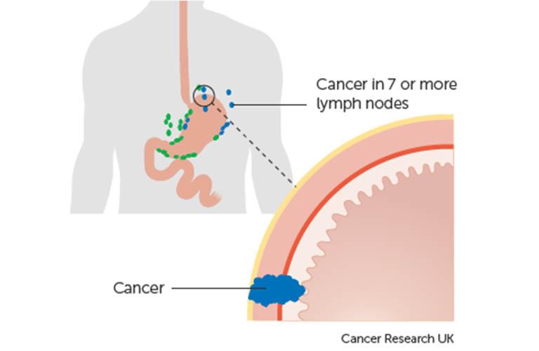 ung thư dạ dày giai đoạn 3B