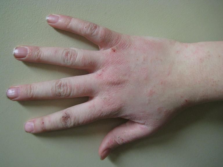 Triệu chứng đặc trưng của bệnh chàm da bị khô, bong tróc, nổi mụn nước...