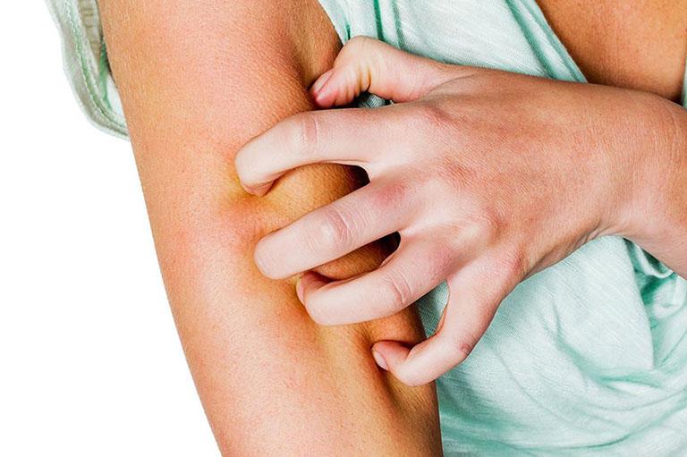 Tìm hiểu về chứng phát ban do nhiệt và cách điều trị