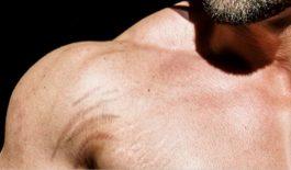 rạn da khi tập gym