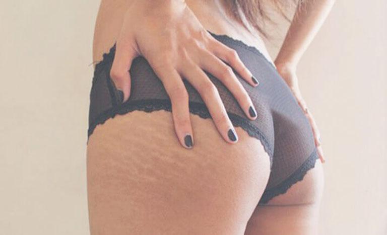 rạn da ở mông