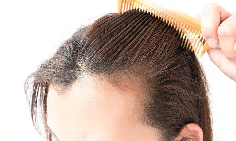 Rụng tóc ở 2 bên thái dương