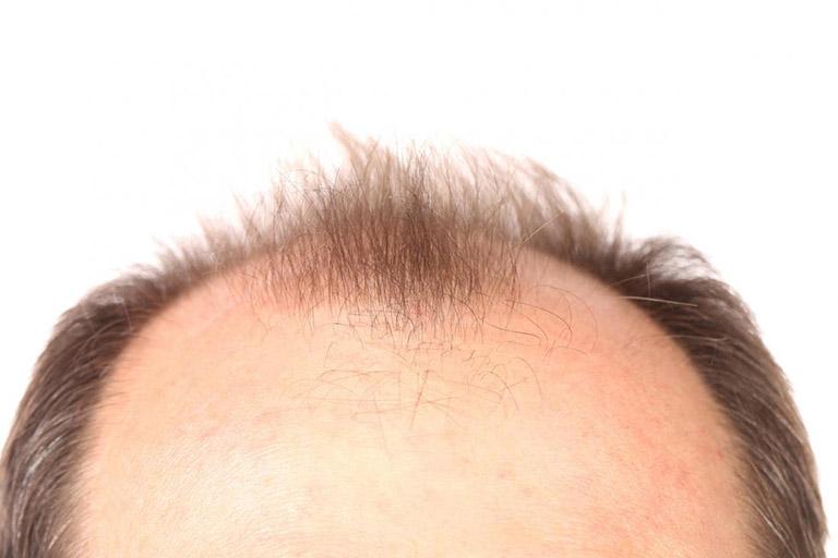 rụng tóc di truyền