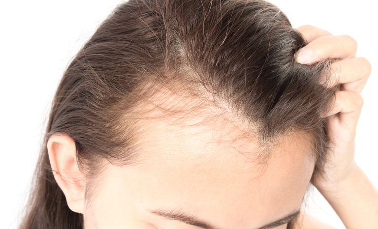 rụng tóc ở tuổi trung niên