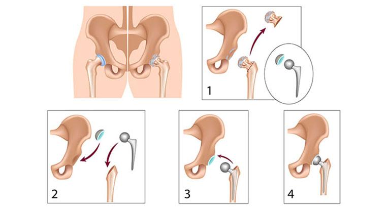 phẫu thuật thay khớp háng toàn phần không xi măng