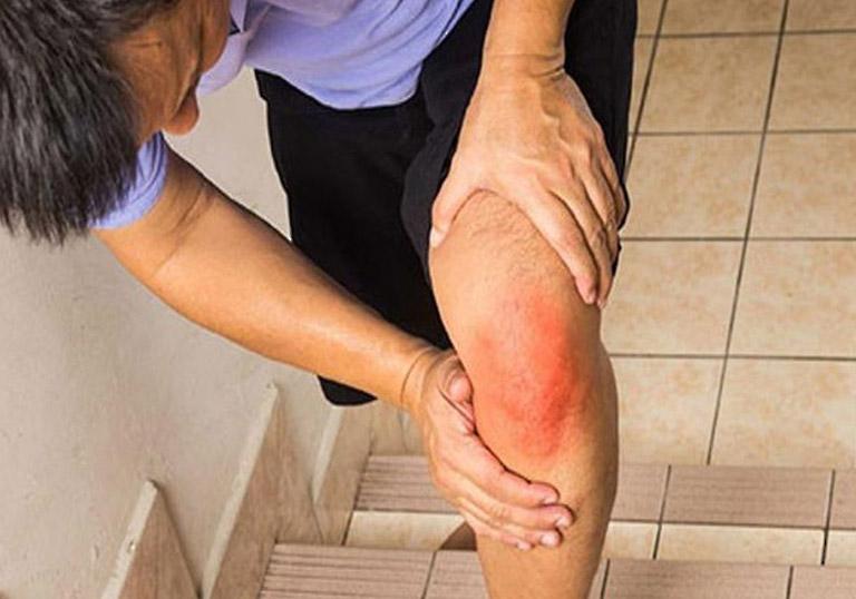Người bệnh cần phải cẩn thận hơn trong việc di chuyển hàng ngày khi bị thoái hóa khớp gối