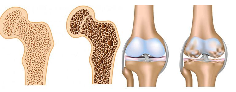 Thoái hóa khớp và loãng xương : Hiểu đúng để tránh nhầm lẫn