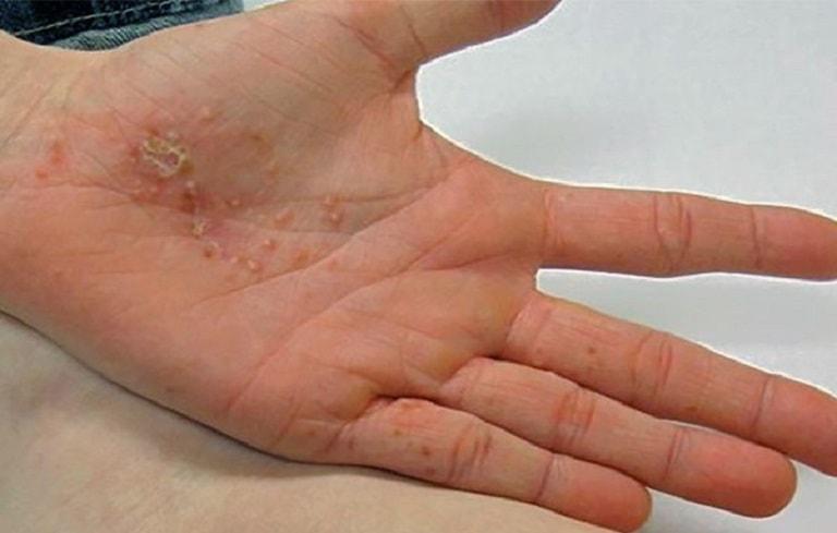 Bệnh ở bàn tay