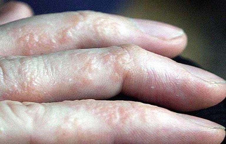 bệnh ở ngón tay
