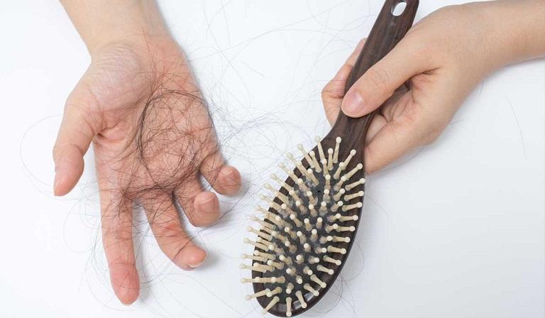 Rụng tóc theo mùa