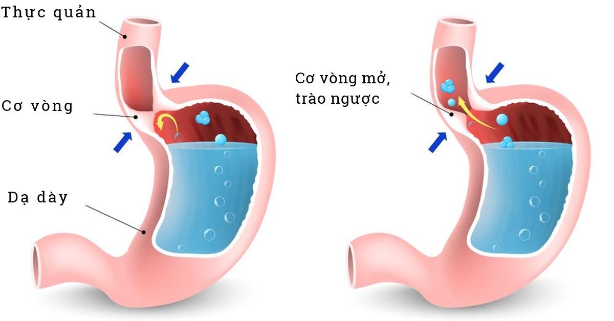 Trào ngược dạ dày thực quản là biến chứng sau phẫu thuật cắt dạ dày