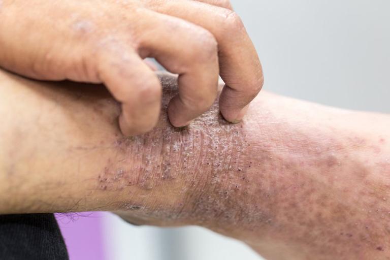 triệu chứng bệnh viêm da cơ địa dị ứng