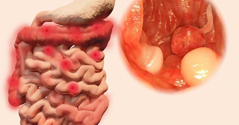 Triệu chứng viêm loét đại tràng