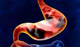nhận biết ung thư dạ dày giai đoạn cuối