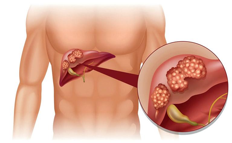 ung thư dạ dày di căn đến xương