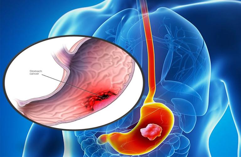 ung thư dạ dày do hút thuốc lá